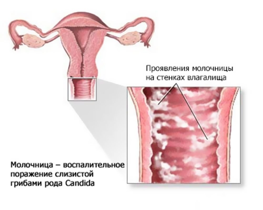 Опасные выделения при беременности в третьем триместре фото