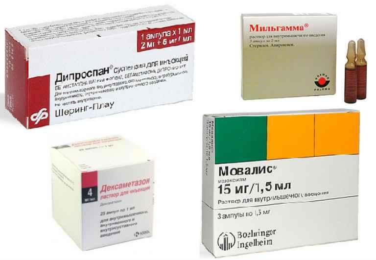 Какие препараты чаще всего назначают при остеохондрозе поясничного отдела