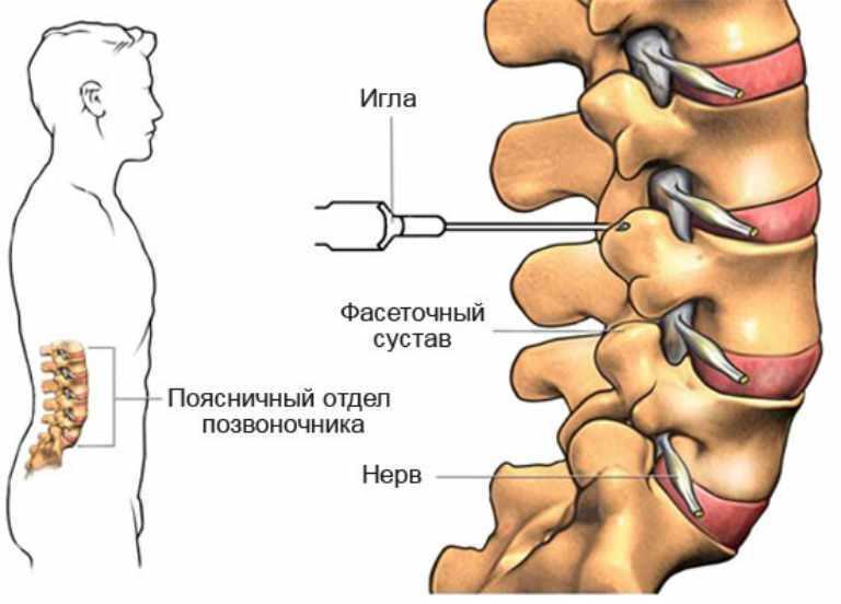 Мильгамма при остеохондрозе шейного отдела