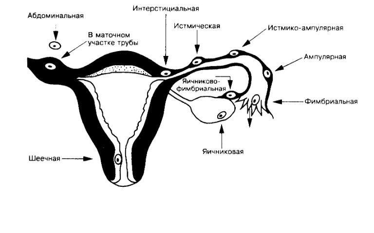 Что такое внематочная беременность, признаки и симптомы на ранних сроках какие