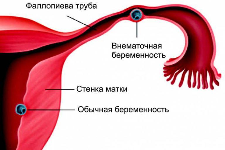На каком сроке происходит разрыв трубы при внематочной беременности