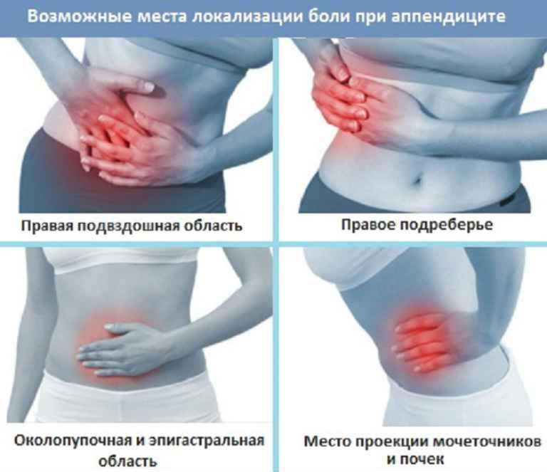 Симптомы аппендицита у женщин, как определить в домашних условиях